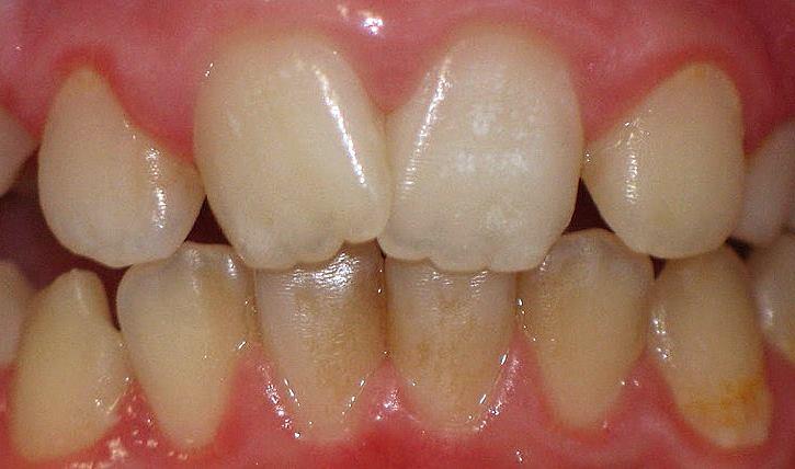 Гиперплазия зубов