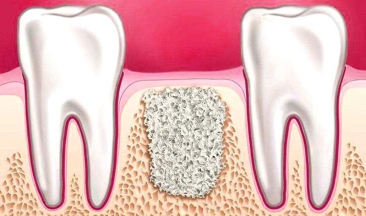 Эрозии костной ткани зубов