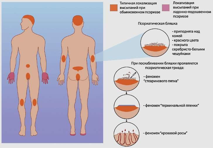 Как развивается псориаз