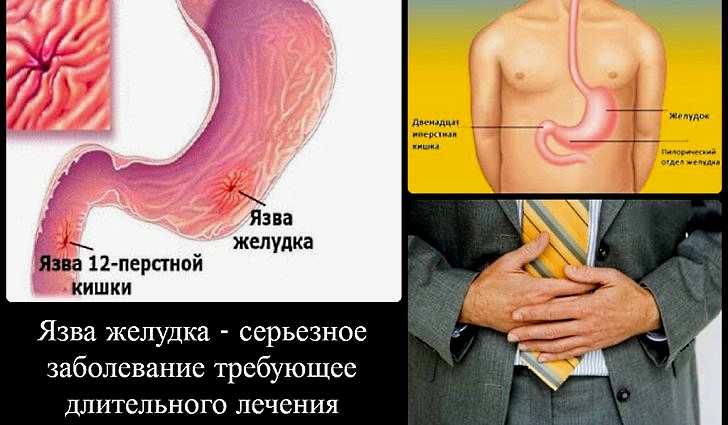 Клинические рекомендации по язвенной болезни желудка 2018