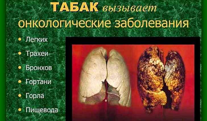 О вреде курения при язвенной болезни