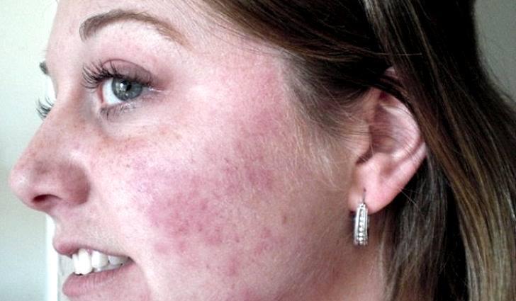 Признаки демодекоза на лице