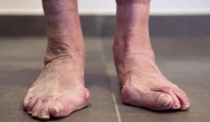 Внимание - на дефекты стопы и ногтей