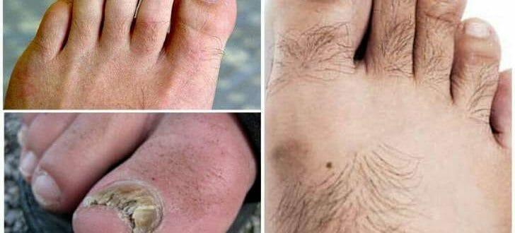 Как лечить онихомикоз ногтей на ногах