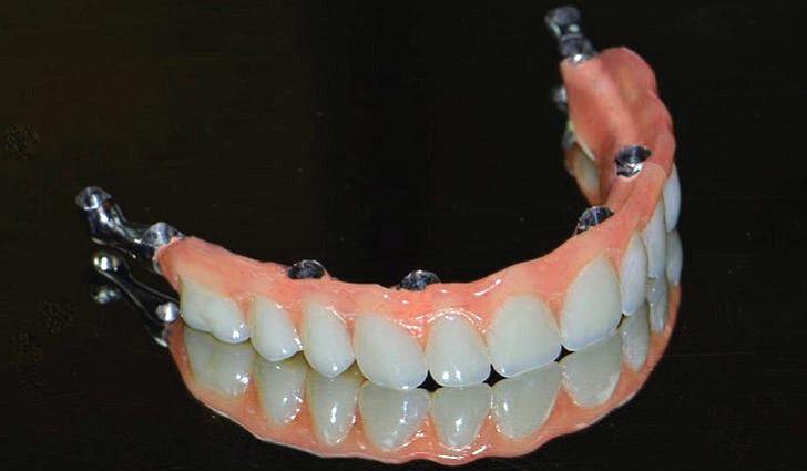 Зубная имплантация или зубное протезирование