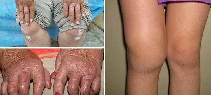 Чем лечить псориатический артрит. Симптомы и прогноз заболевания