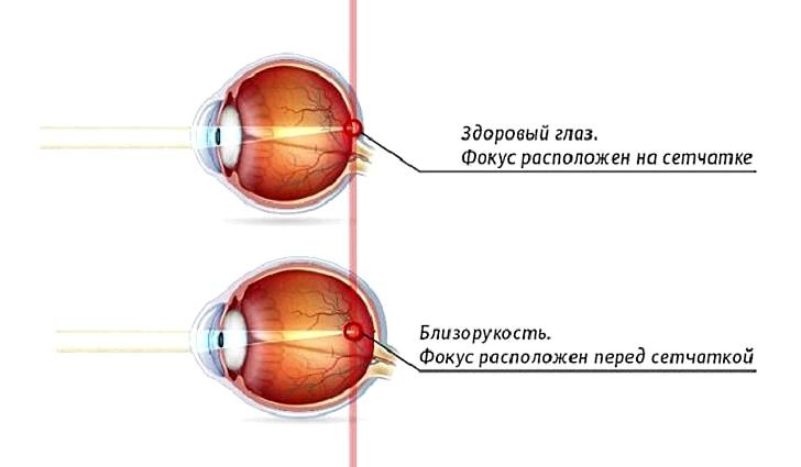 Что такое близорукость