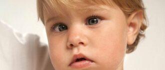 Как лечить косоглазие у детей. Причины, симптомы, диагностика