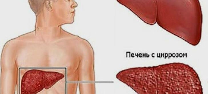 Можно ли вылечить цирроз печени на последней стадии