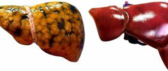 Жировой гепатоз печени: симптомы и лечение медикаментами
