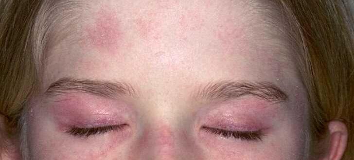 Дерматомиозит - симптомы у взрослых, причины, лечение, диагностика