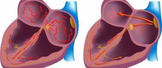 Как лечить мерцательную аритмию сердца, современные препараты для лечения
