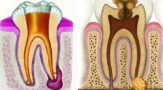Как лечить остеомиелит нижней челюсти, симптомы заболевания
