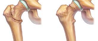 Перелом шейки бедра - реабилитация после операции в домашних условиях