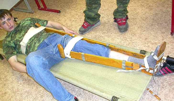 Первая помощь пострадавшему при переломе шейки бедра