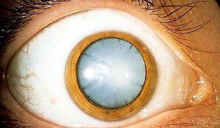 Что такое хрусталик глаза?