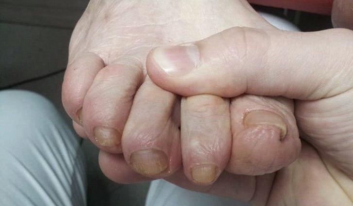 Осложнения диабетической нейропатии