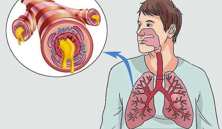 Хронический бронхит - лечение народными средствами