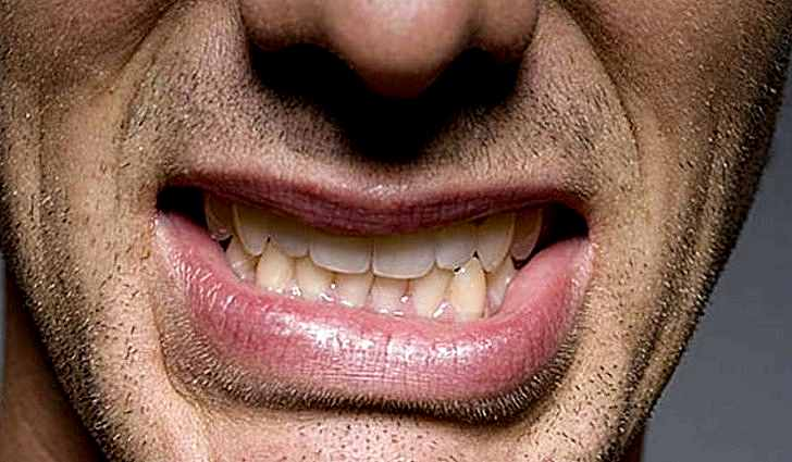 Бруксизм - ночной скрежет зубов