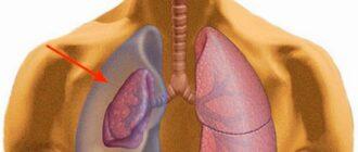 Гемоторакс возникает при травме грудной клетки