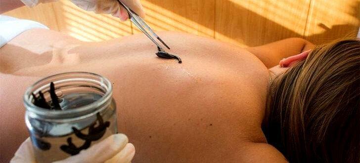 Лечение пиявками - гирудотерапия