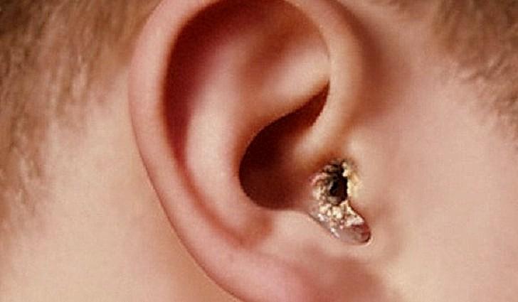 Грибок ушей - отомикоз