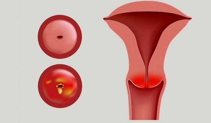 Симптомы цервицита шейки матки - лечение хронического типа