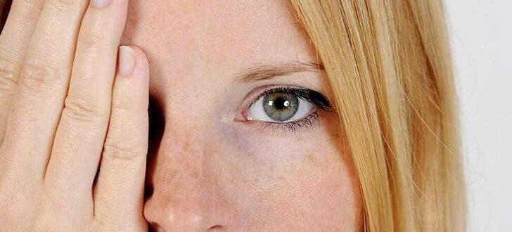 Корковая слепота - причины, симптомы, диагностика, лечение