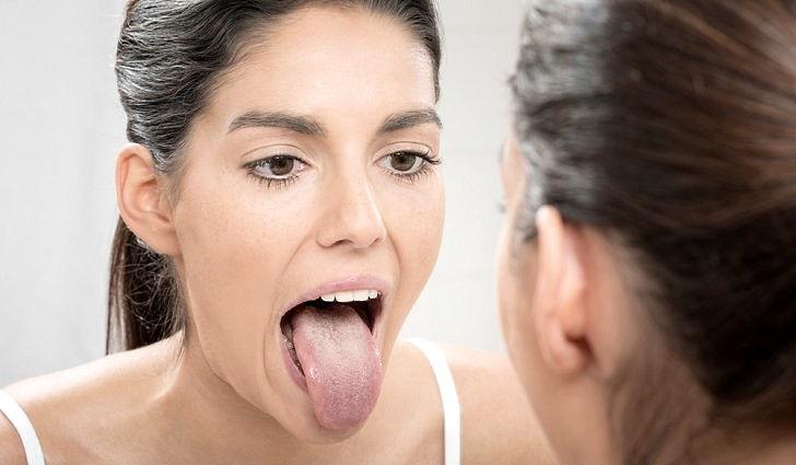 Симптомы глоссита языка
