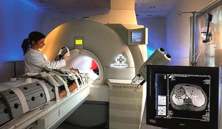 Диагностика эхинококкоза - МРТ печени
