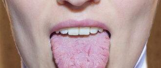 Глоссит языка: фото, симптомы, лечение причины