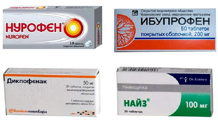 Лечение ишиаса нестероидными противовоспалительными препаратами