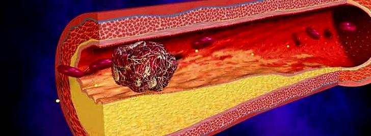 Последствия высокого гемоглобина