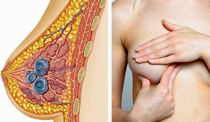 Причины образования кисты в молочных железах