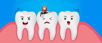 Кариес зубов - лечение, профилактика