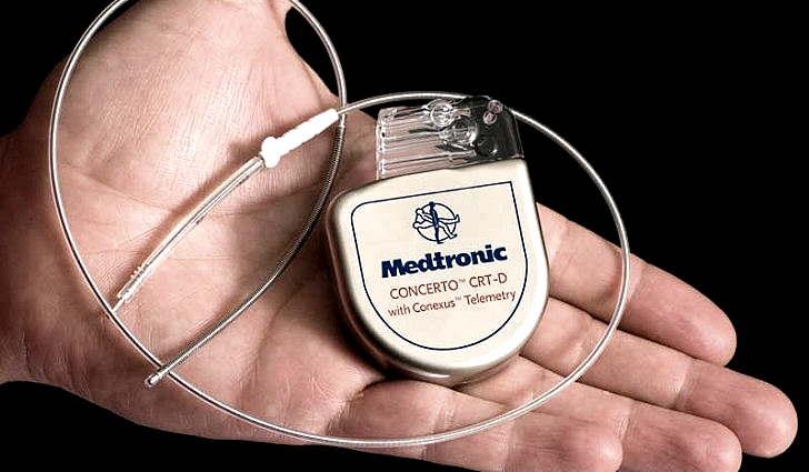 Установка кардиостимулятора под кожей