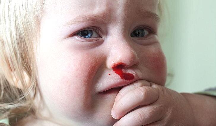 Кровотечение из носа у ребенка, причины и лечение в домашних условиях