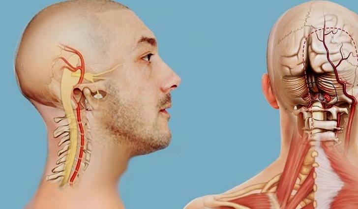 Что это такое спондилез шейного отдела позвоночника, как лечить
