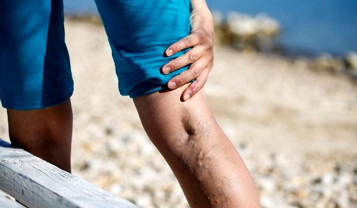 Варикоз часто вызывает миалгию - боли в икроножных мышцах