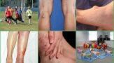 Гигрома: что это такое и как лечить в домашних условиях