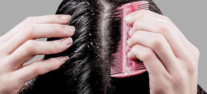 Себорея кожи головы: лечение народными средствами