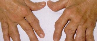 Псориатический артрит: клинические рекомендации по диагностике и лечению
