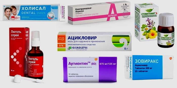 Виды стоматита и лечение у взрослых, недорогие препараты