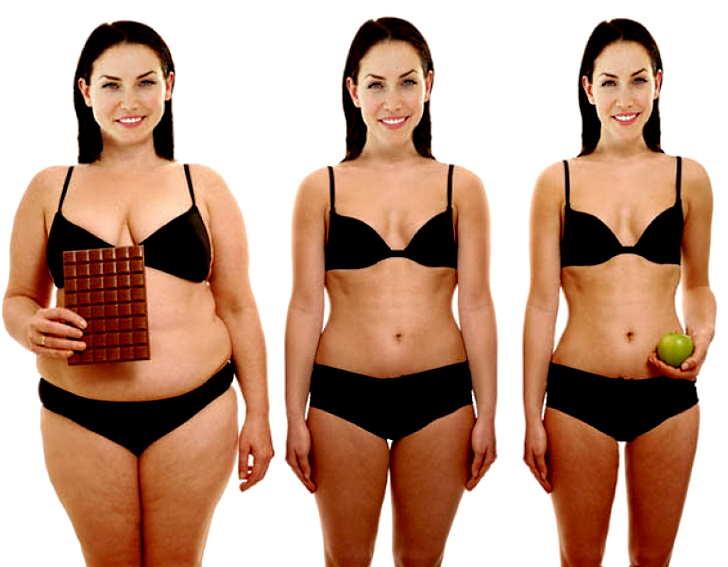 При гонартрозе сбрасывайте вес постепенно